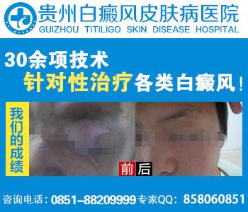 贵州白癜风哪家医院看的好