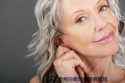 贵阳白癜风治疗方案