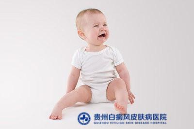 贵阳治白癜风的专科医院